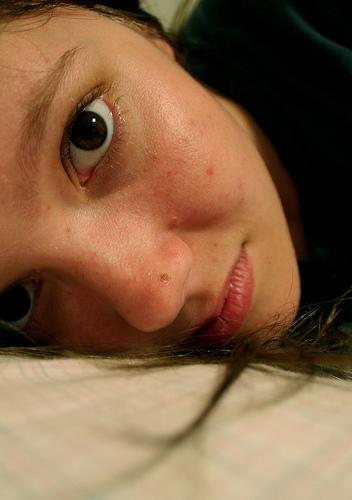 pimple photo